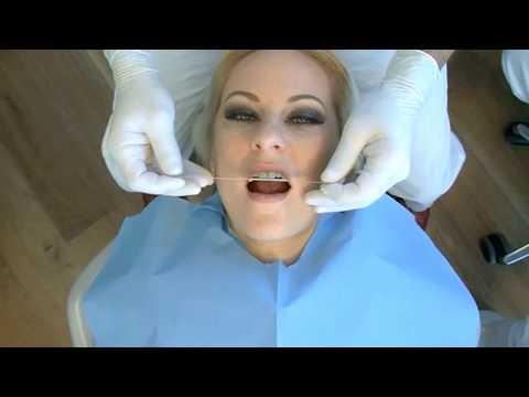 Демонстрация работы реставрации фронтальной группы зубов с композитными винирами Componeer