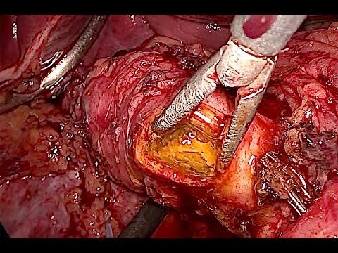 Laparoskopowa eksploracja PŻW. Krwawienie z tętnicy naddwunastniczej