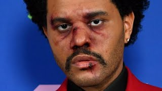 This Is What Happened To The Weeknd's Face At The VMAs