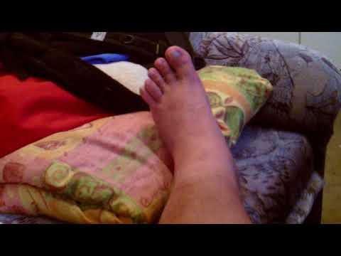 Hogyan lehet enyhíteni az ízületi és izomfájdalmakat