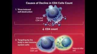 How HIV Causes Disease