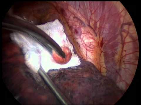 Della prostata del seno