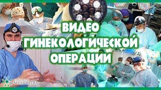 Медведев Миомэктомия, тубэктомия, большой низкий узел по задней стенке
