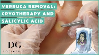 Verruca removal cryotherapy and salicylic acid