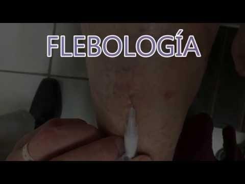 La charge aérobie à la varicosité