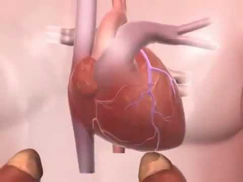 Les tests nécessaires pour lhypertension