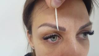 Healed from 1st eyebrow Correction by El Truchan