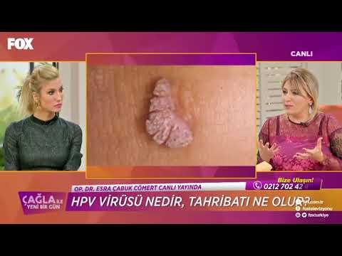 Emberi papillomavírus a szemben