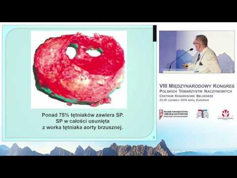 Indeks kanału przepływu krwi jako nowy predyktor zbliżającego się pęknięcia tętniaka aorty brzusznej