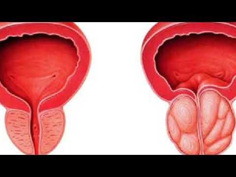 Prostatitis treatment hazel leaves