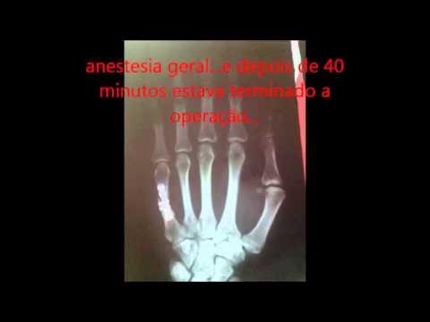 Osteocondrosi dei segmenti di movimento lombare