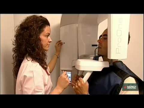 Die Osteochondrose brust- der Abteilungen der Wirbelsäule, wie zu behandeln