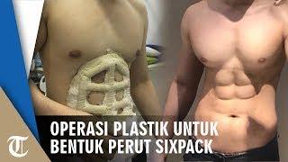 Tak Perlu Olahraga, Kini Bisa Operasi Plastik untuk Capai Perut Sixpack Bak Olahragawan