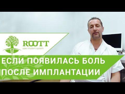 Боль после имплантации зубов. 😭 Нормально ли испытывать боль после имплантации зубов? ROOTT.