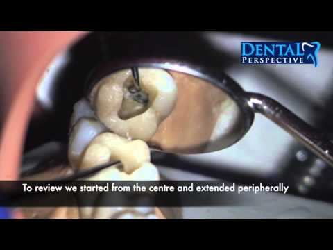 Lower First Molar - Access Cavity / Endo HD - Dental Perspective