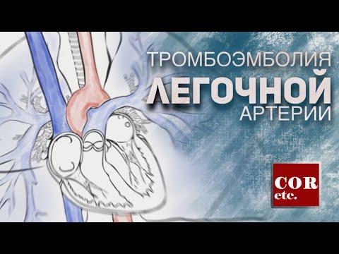 Тромбоэмболия легочной артерии (ТЭЛА).