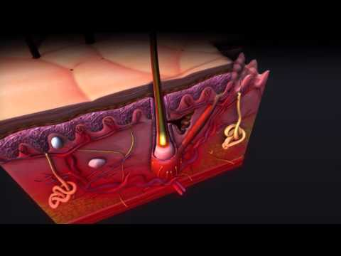 Atopitchesky la dermatite à bras les symptômes