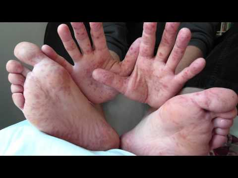 Video Spotting Hand, Foot & Mouth Disease