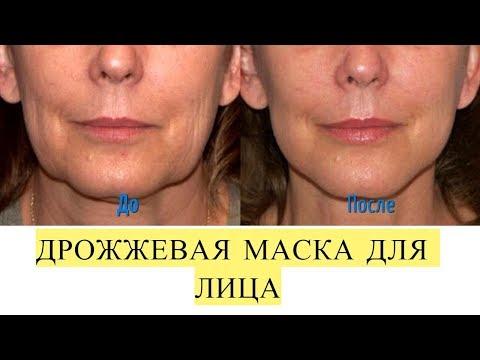Темные круги под глазами фото до и после макияжа