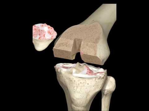Cambiamenti artritici nel trattamento articolazioni