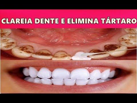 Clarear Os Dentes Em 3 Minutos Remover Tartaro E Gengivite Basta