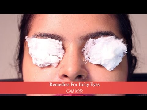 Video Home Remedies : Cold Milk for Itchy Eyes