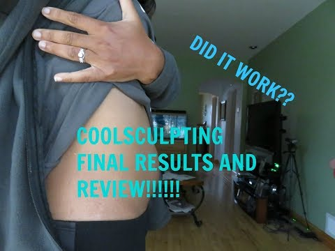 Coolsculpting FINAL RESULTS! Before and after Pic!