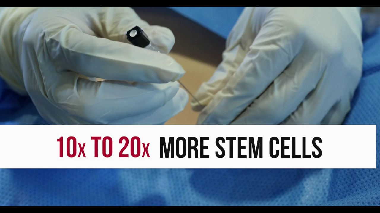 Stem Cell Therapy maxresdefault - When a Disc Stem Cell Injection Makes Sense, and When It Doesn't