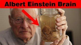 Albert Einstein के दिमाग का पूरा सच. The Full Truth Of Albert Einstein Brain.