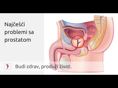 esercizi per la prostatite meaning definition