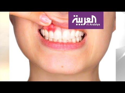 العرب اليوم - شاهد: اللثة السليمة أساس لأسنان قوية لأسلوب حياة صحي