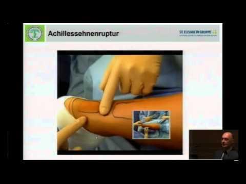 Wie die Zapfen von den Schwielen auf den Fingern zu entfernen