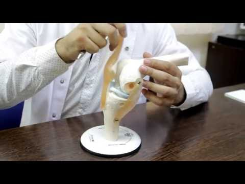 Artroza tratamentului de înlocuire a articulațiilor genunchiului