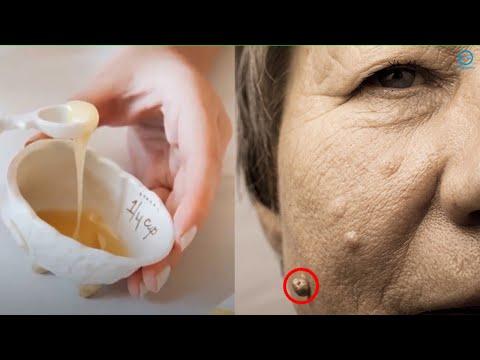 Vaccin papillomavirus endometriose
