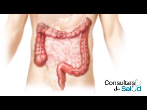 Se vindeca cancerul de colon