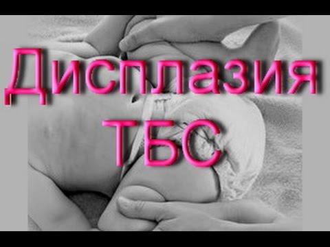 Дисплазия тбс (тазобедренного сустава) у детей/ Наша история