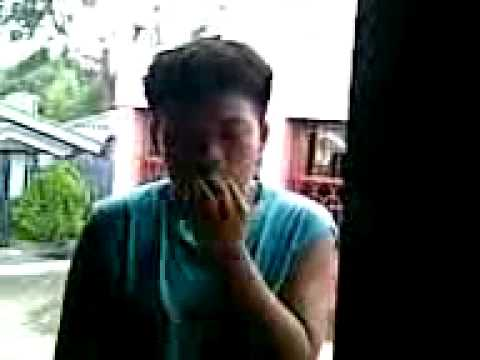 Kuko halamang-singaw sa kamay ng mga larawang maagang yugto