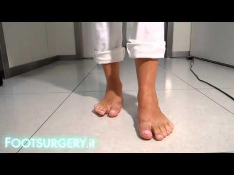 Osteocondrosi e palestra