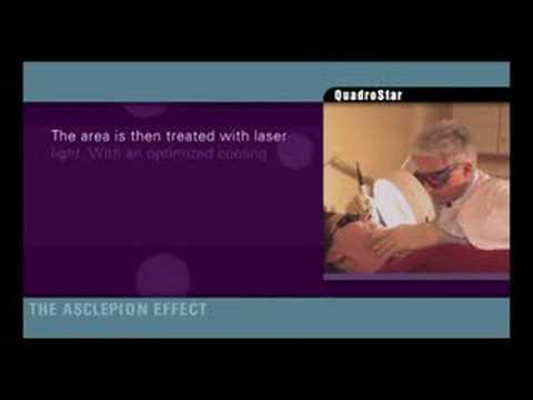 Come trattare varicosity una subpestilenza