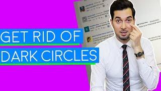Dark Circles | How To Get Rid Of Dark Circles