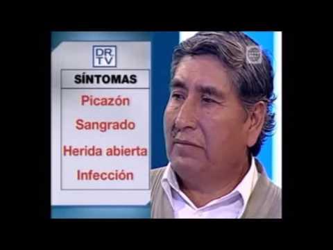 Caso de Tomás resuelto en DR TV: Cáncer de Piel. Antes y después.