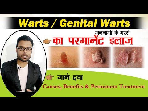 Autovindecare a negi genitale