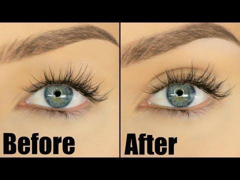 Eye microsurgery Irkutsk presyo cosmetology