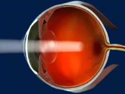 Restabiliți vederea cu un singur exercițiu