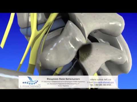 Реферат на тему реабилитация сколиоза