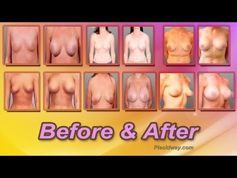Before-and-After-Breast-Augmentation-in-Mexicali-Mexico