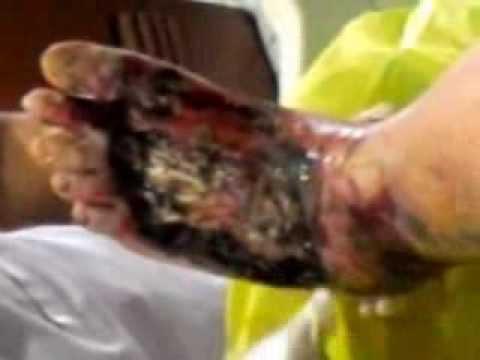 Video Merawat luka Diabetes bagian 2-Suster Romelah oleh Oei Gin Djing, Akupunkturis