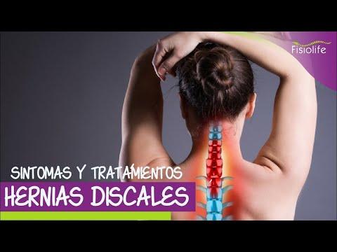 Difundir osteocondrosis intervertebral de la torácica