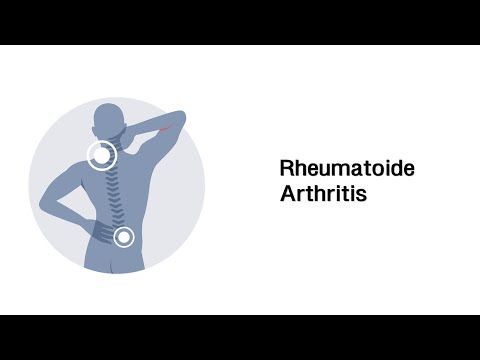 Der Name der Pille mit zervikaler Osteochondrose