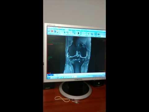 Cirugía en la articulación de la cadera en tyumen